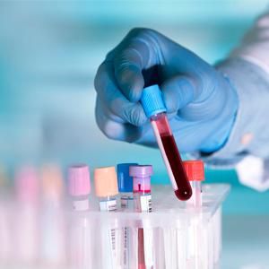 Наш медицинский центр сотрудничает с лабораторией АРХИМЕД - одной из ведущих медицинских лабораторий